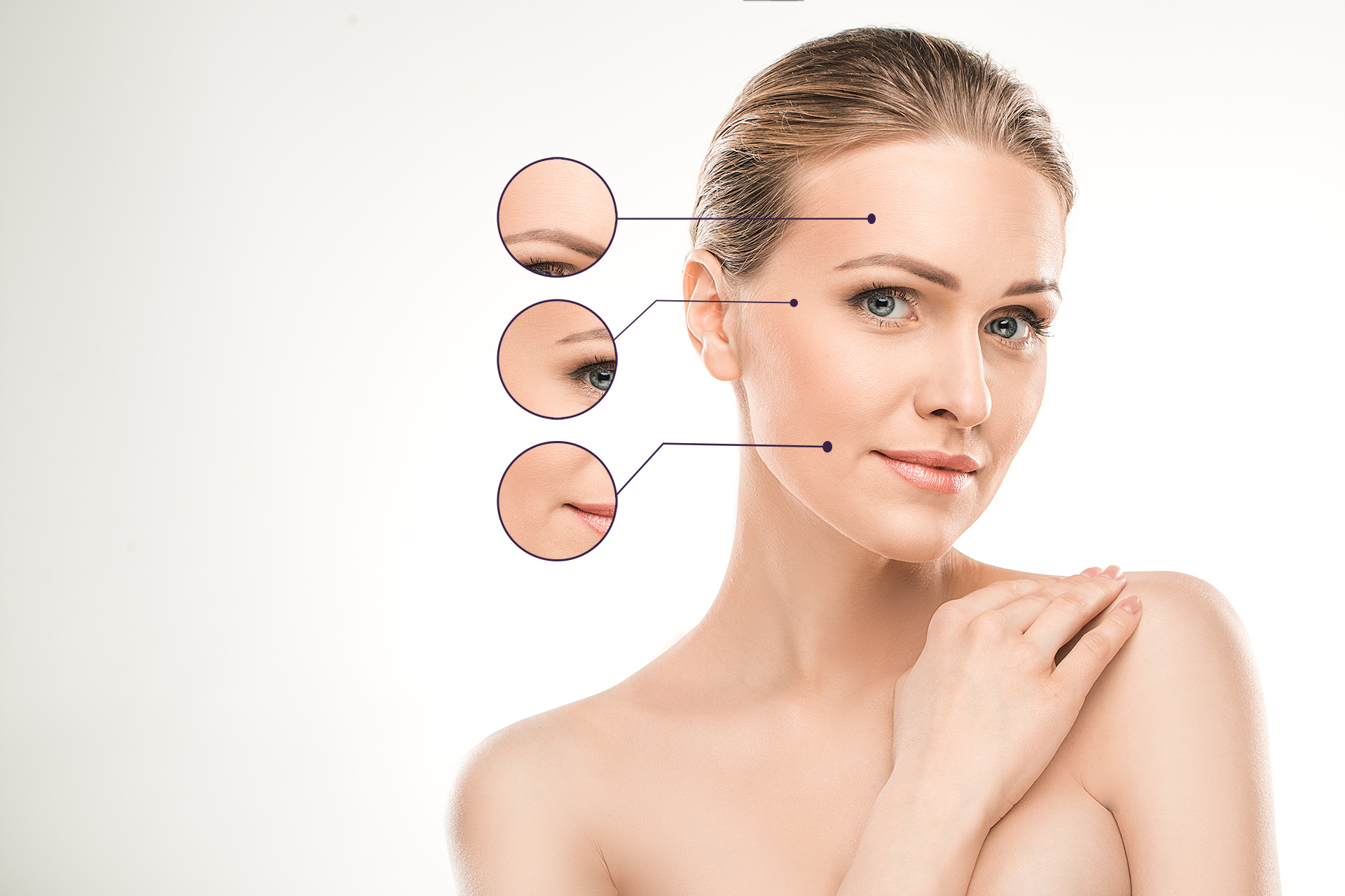 Botox Treatment areas